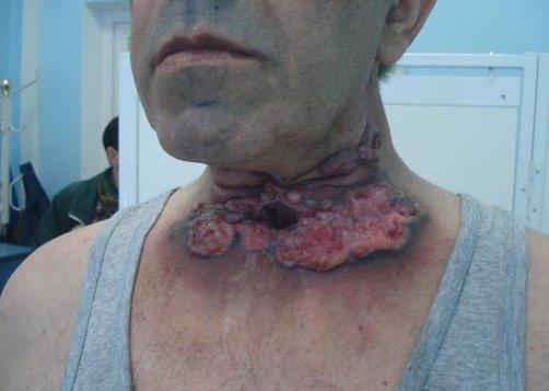 symptomen strottenhoofd tumor