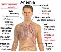 Аденома предстательной железы (простаты ) - Симптомы.