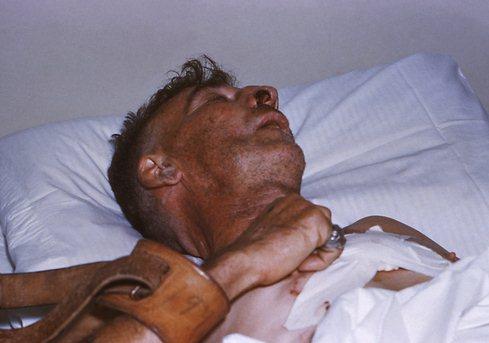 признаки заражения глистами у человека