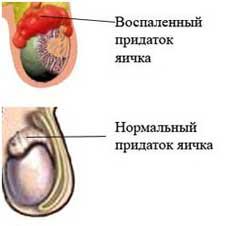 Эпидидимит симптомы
