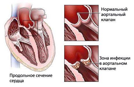 Ревматизм сердца - лечение, симптомы, прогноз