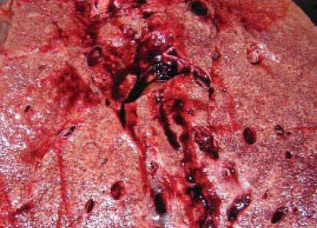 Кардиосклероз - виды, причины, симптомы, лечение, прогноз