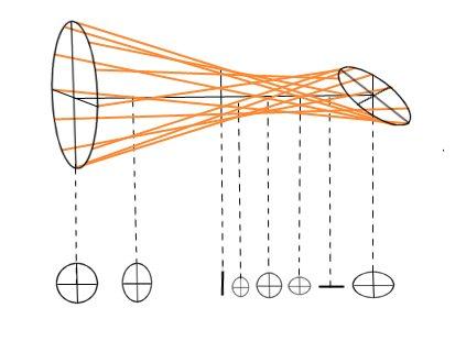 Алгоритм проведения внутриглазного давления