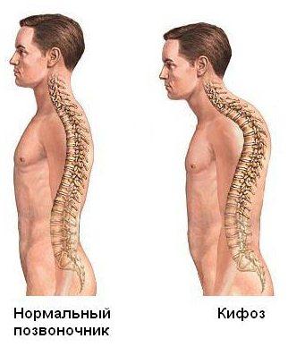 Лечебная физкультура при сколиозе шейного отдела