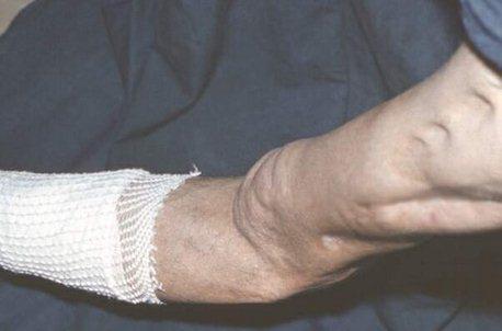 остеомиелит симптомы и лечение фото