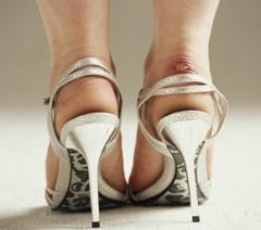 Возникновения мозолей на ногах