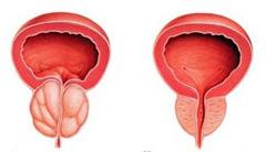 Лекарства от простатита в беларуси