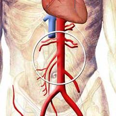 Лечебная гимнастика при атеросклерозе сосудов нижних конечностей