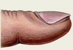 Фаланги пальцев рук — внешний вид ...: www.neboleem.net/falangi-palcev-ruk.php