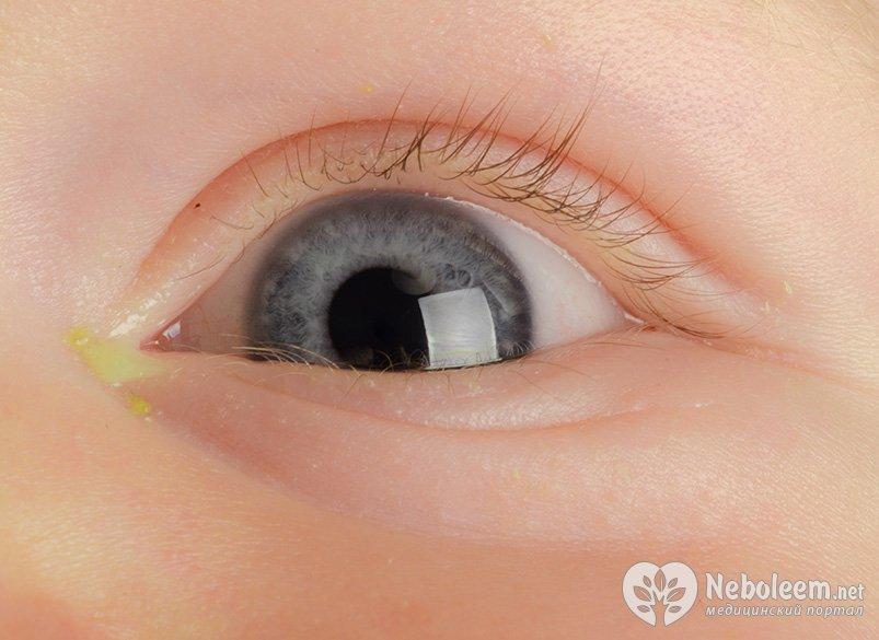 Воспаление в глазу у ребенка фото