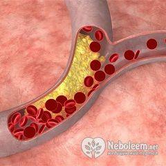 повышенный холестерин вес