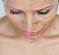 отбелить лицо от пигментных пятен перекисью
