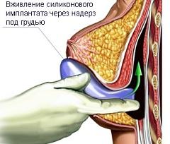 Как увеличить грудь если у тебя 0 размер