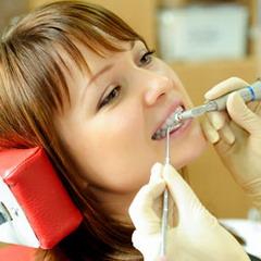 Процедура відбілювання зубів
