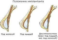 Збільшення грудей - відгуки, методи, наслідки