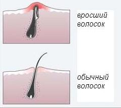 Як виглядають врослі волосся після епіляції?