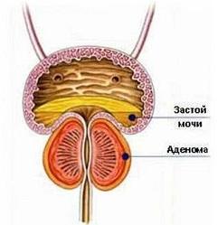 Отзывы о хорошем лечении простатита