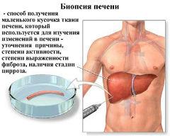 Упражнение при болезнях печени