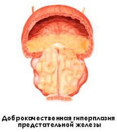 giperplaziya-predstatelnoy-zhelezi-1-st