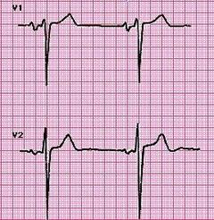 Увеличение правого желудочка сердца
