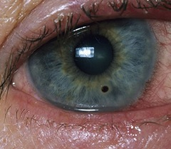 Чувство инородного тела в глазу