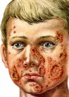 Поражение кожи при избытке йода называется йододерма