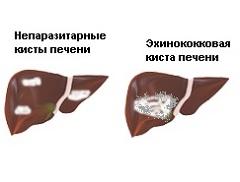 Прививка гепатит в роддоме да или нет