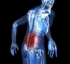 Корсеты для спины для лечения грыжи