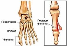 Как снять воспаление косточки на большом пальце ноги  лечение