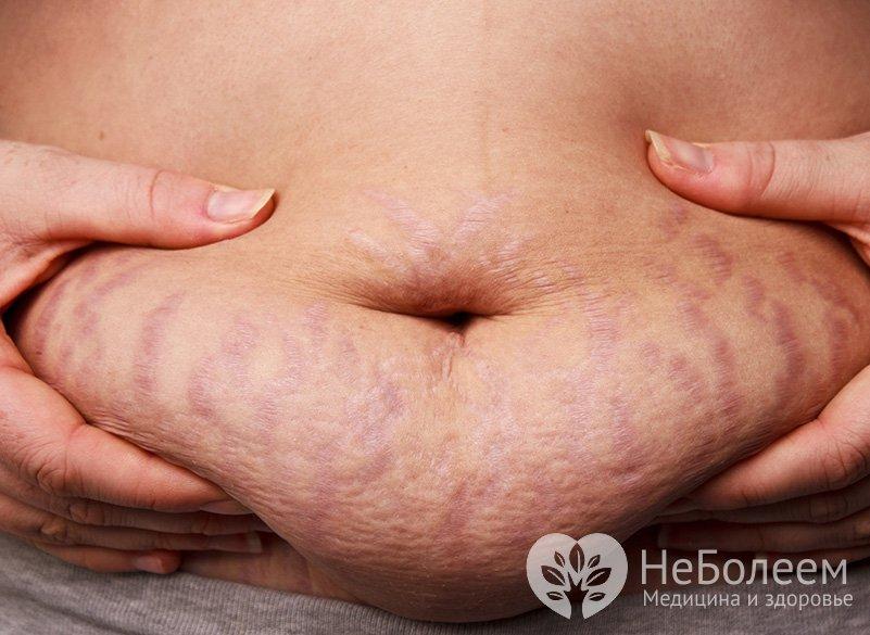 как убрать живот за неделю диета