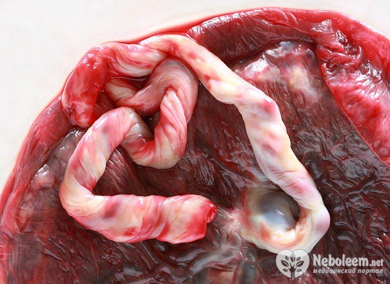 Плацента 1-2 степени зрелости на 37 неделе беременности