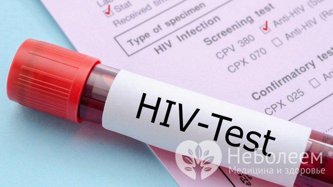 hiv test stavanger eskorte nett
