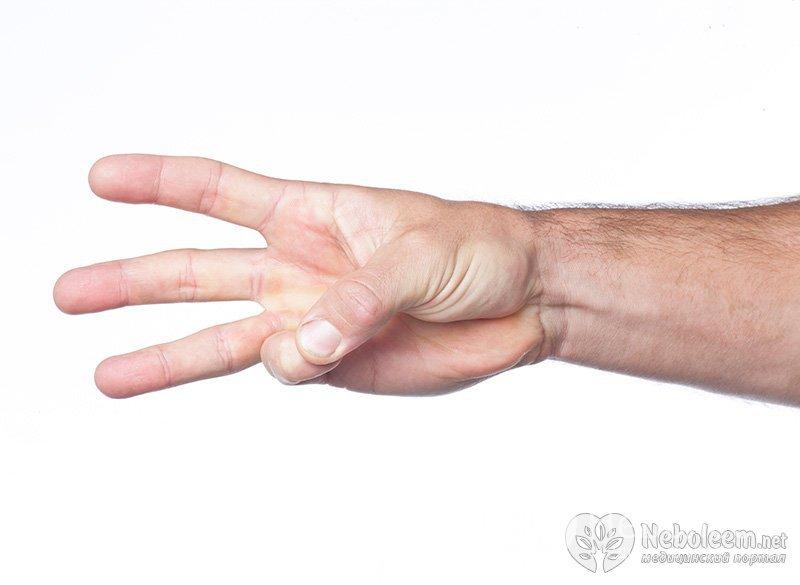К чему снится правая рука в язвах