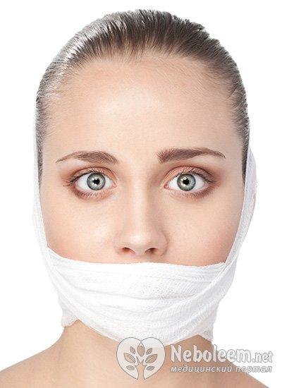 Онемение нижней губы ботокс - 0a9