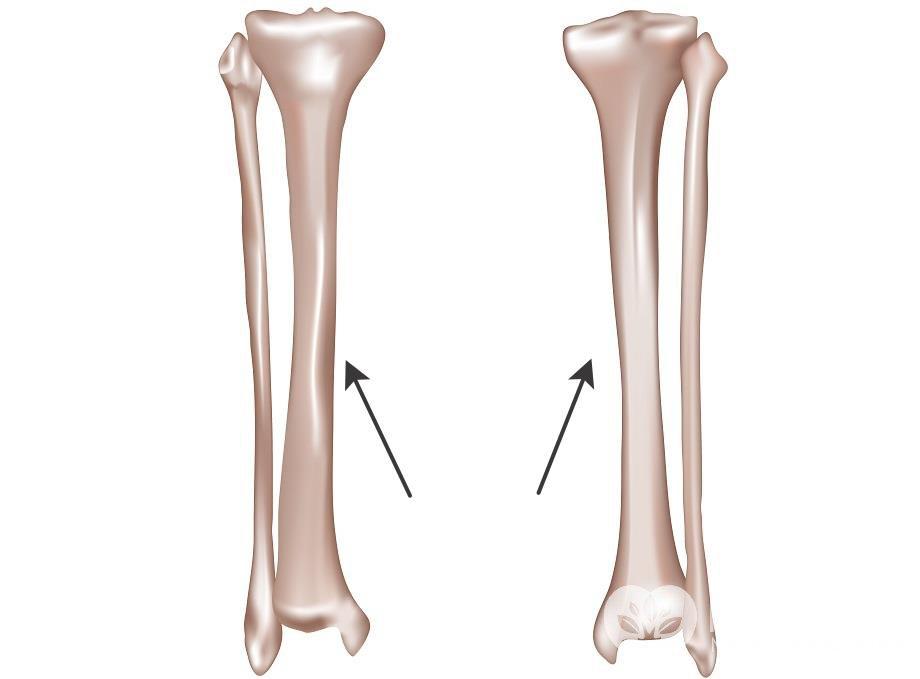 Большая берцовая кость