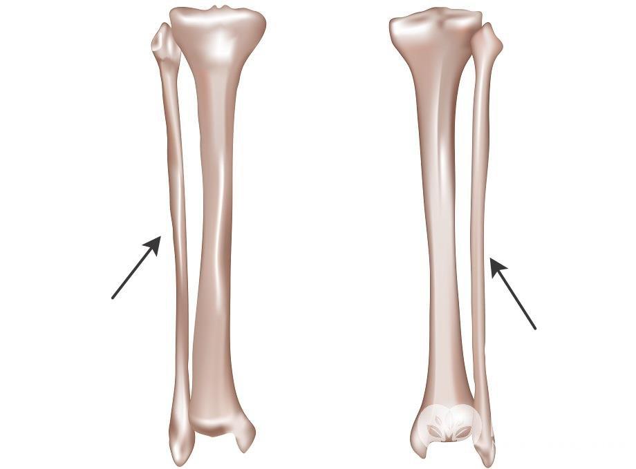 Малая берцовая кость
