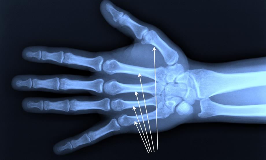 Пястная кость