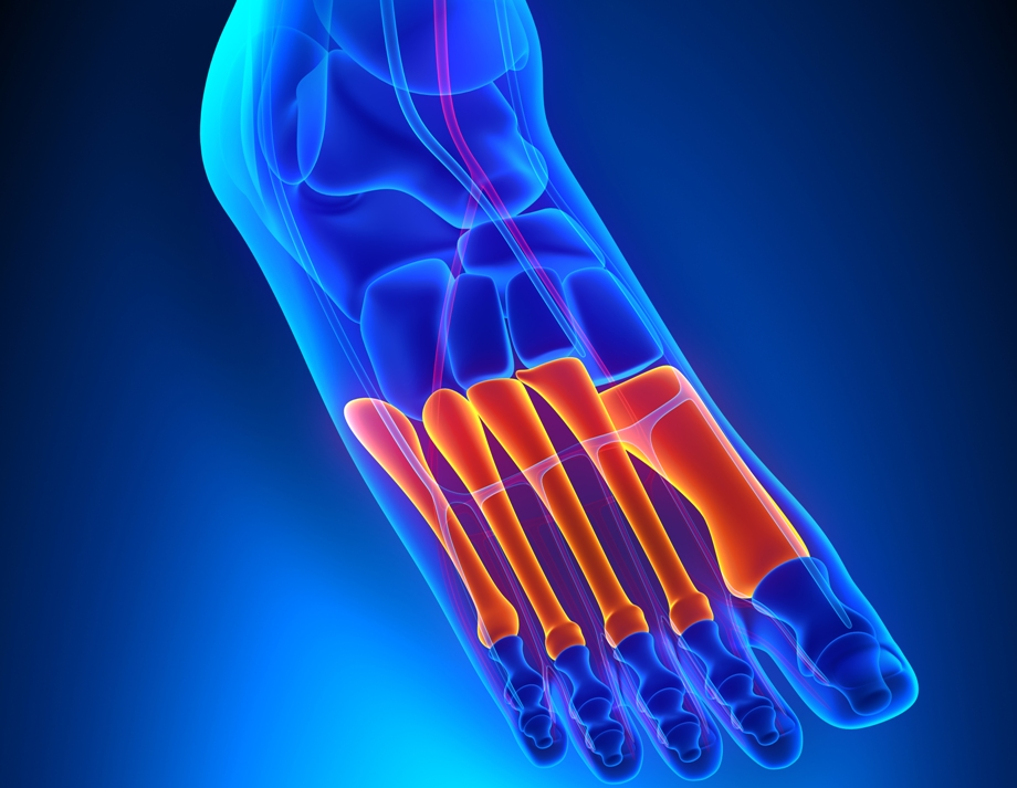 Плюсневая кость