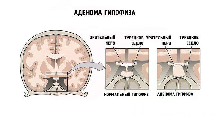 Массаж при микроаденоме гипофиза