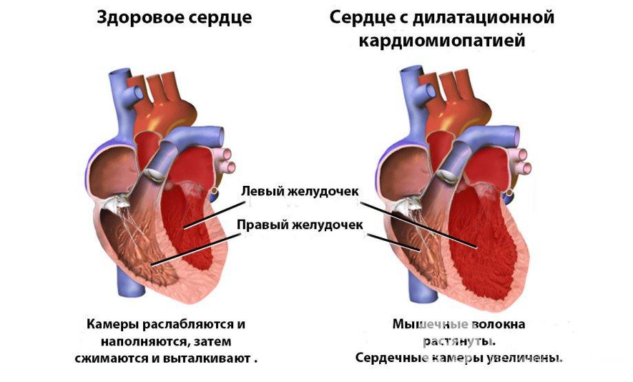 Симптоми алкогольної кардіоміопатії