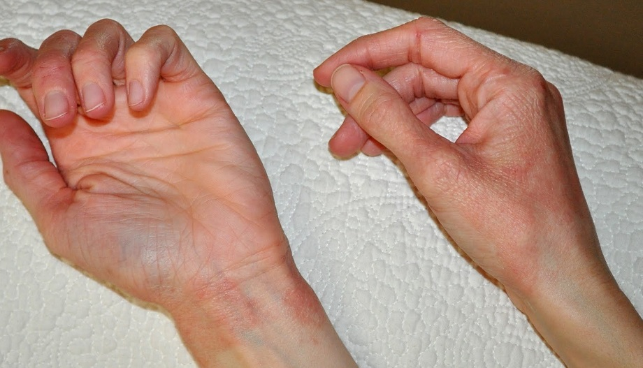 аллергия на холод причины и лечение