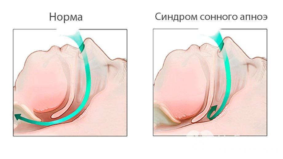 Ночное обструктивное апноэ