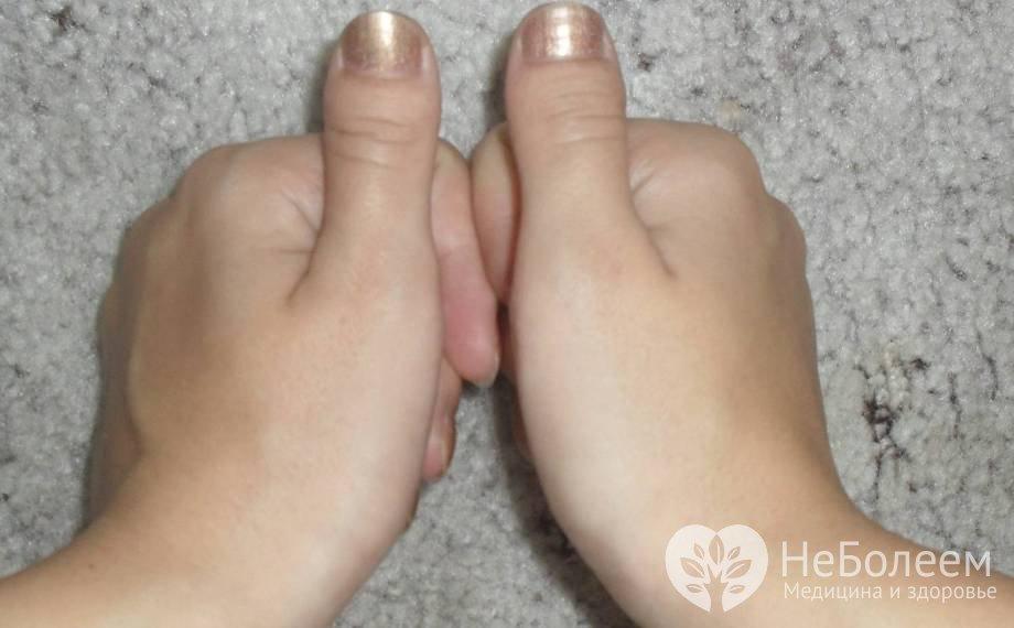 Ноготь на большом пальце руки
