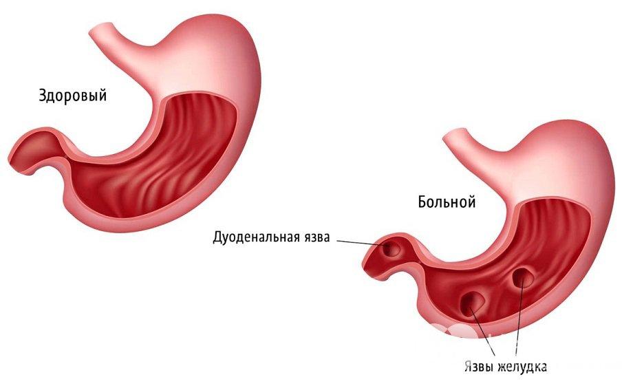 Симптомы язвы двенадцатиперстной кишки, лечение язвенной