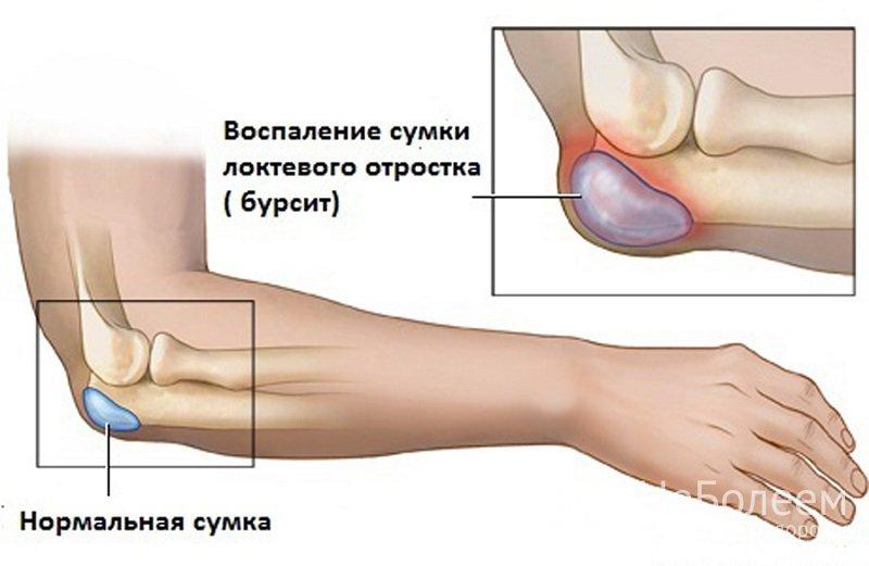 Бурсит локтевого сустава лечение форум