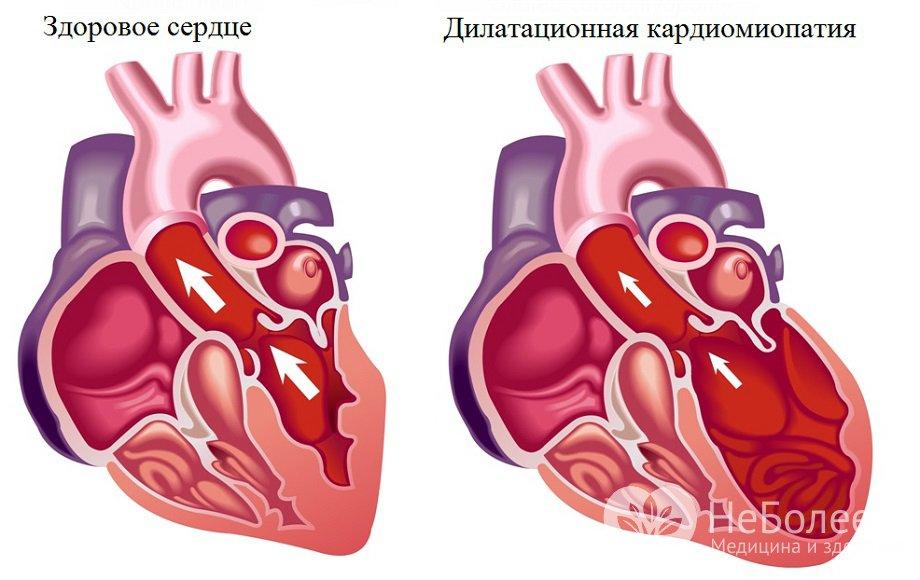 симптомы различных форм кардиомиопатии и ее диагностика