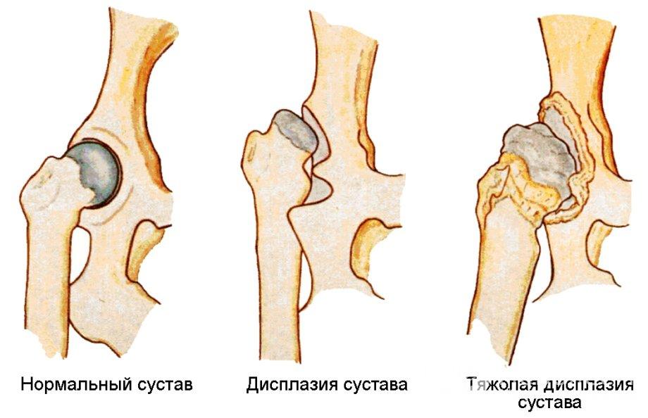 лфк при заболевании дисплазия тазобедренного сустава