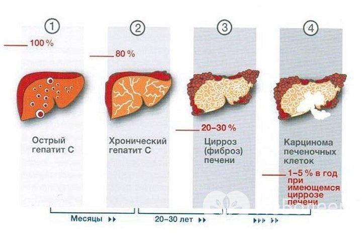 Гепатит с что это и как лечить