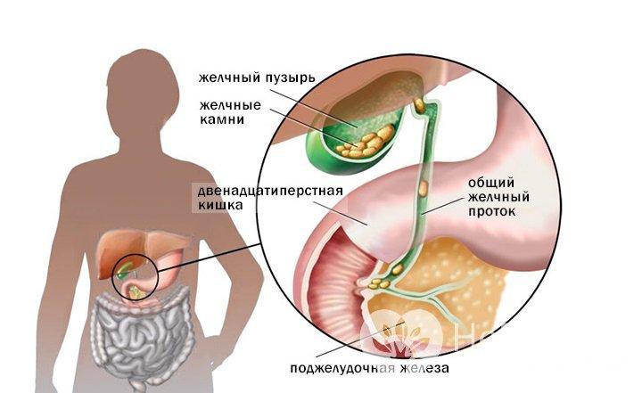 Как снимать приступ желчнокаменной болезни в домашних условиях
