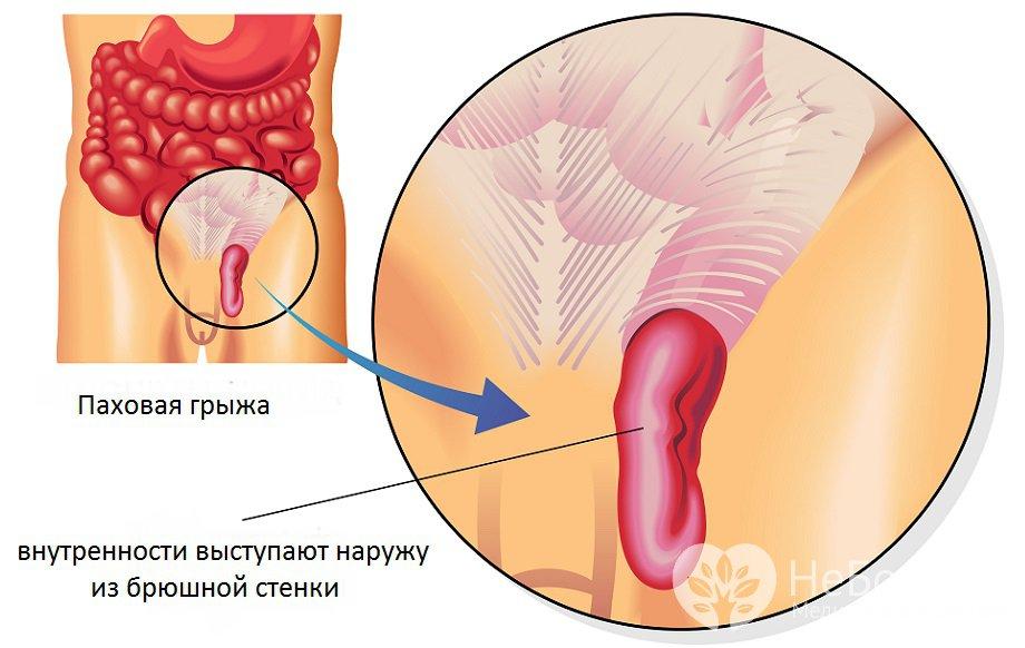 Косая паховая грыжа у мужчин операция